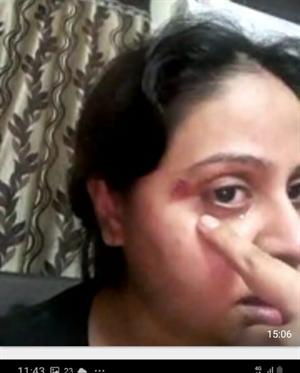 पत्रकार शिवानी हांडा ने दहेज लोभी ससुराल वालो के विरुद्व दहेज के लिए मारपीट करने और घर से बाहर निकालने के लिए न्याय की लगाई गुहार